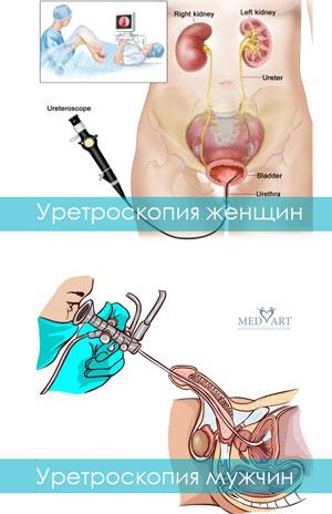Уретроскопия женщин и мужчин