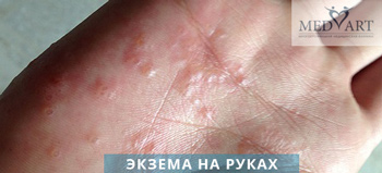 Лечение себорейной и мокнущей экземы