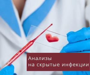 Инфекционные заболевания передающиеся половым путем анализы