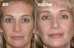 Микродермобразия фото До и После