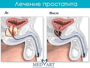 лечение воспаления простатын