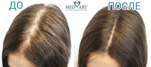 до и после лечение выпадения волос