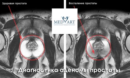 Диагностика аденомы простаты и предстательной железы
