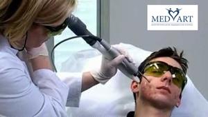 лазера для лечения кожи