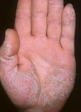 Симптомы псориаза бляшечный