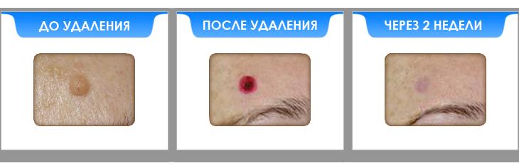 borodavki.png
