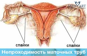 Лечение непроходимости маточных труб