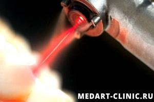 терапевтической лазер