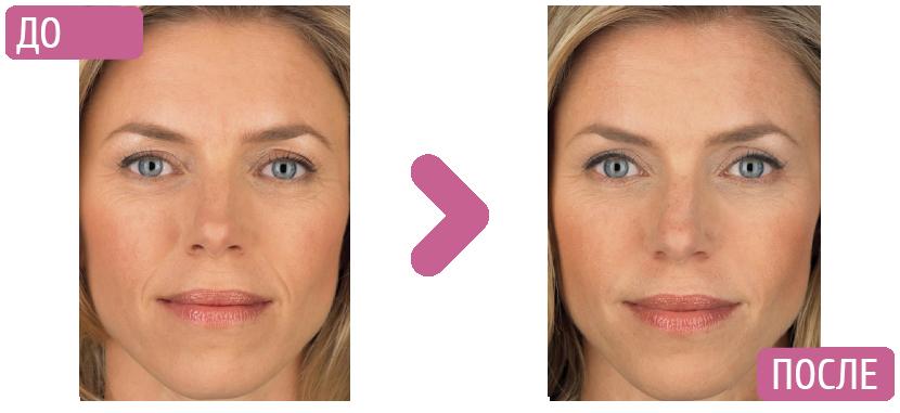 микротоковая терапия до и после