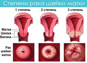 Заболевания шейки матки приводят к раку
