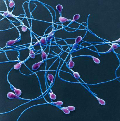 Спермограмма_морфология_сперматозоидов