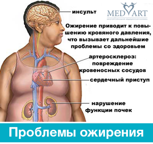 Ожирение симптомы