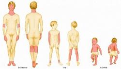 Лечение всех видов нейродермита