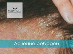 Лечение себореи или когда кожа становится полем боя
