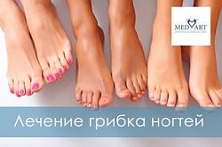 Лечение грибка ногтей или онихомикоз