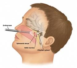 Гипофиз и Гипоталамус: Заболевания гипоталамо-гипофизарной системы